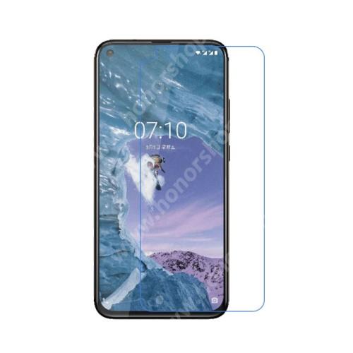 Képernyővédő fólia - Ultra Clear - 1db, törlőkendővel - NOKIA 8.1 Plus