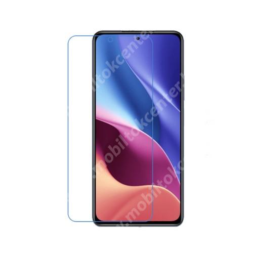 Képernyővédő fólia - Ultra Clear - 1db, törlőkendővel, A képernyő sík részét védi! - Xiaomi Redmi K40 / Redmi K40 Pro / Redmi K40 Pro Plus / Mi 11i / Poco F3