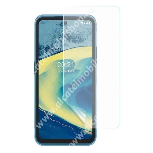 Képernyővédő fólia - Ultra Clear - 1db, törlőkendővel, A képernyő sík részét védi - NOKIA XR20